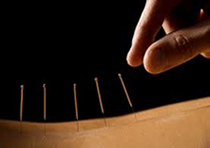 picture of acupuncture